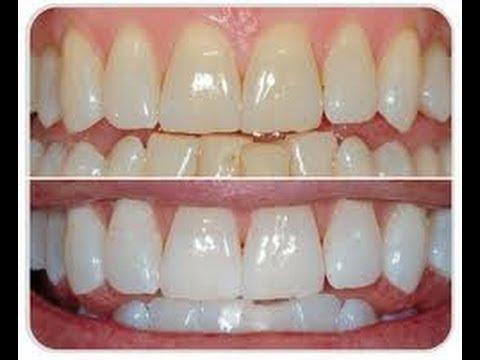 Cómo BLANQUEAR los DIENTES en 3 PASOS / Natural Teeth Whitening