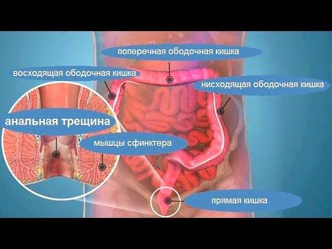 analnaya-treshina-metodi-lecheniya