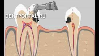 Мостовидное протезирование зубов