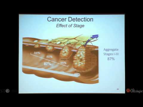 Screening for Colon Cancer - by Richard M. Goldberg, MD