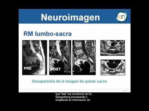 Neurorgs.net-Quiste sacro