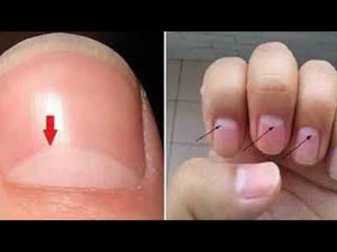जल्द आने वाली मृत्यु' का संकेत है नाखूनों पर ऐसे निशान Nails Jyotish shastra