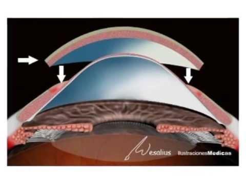 Queratoplastia Lamelar Asistida por Tunelizador Dr  Diego Marin Sanchez