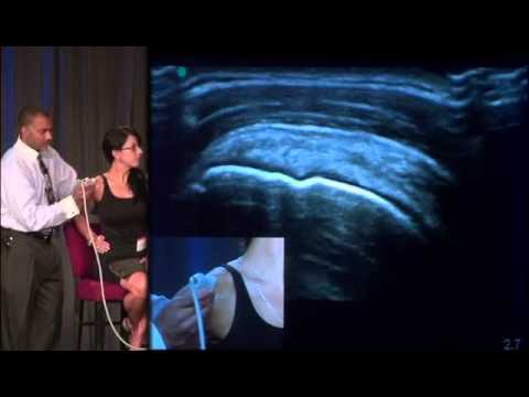 Dr. Don Buford Live 13 Point Shoulder Ultrasound Exam Demo