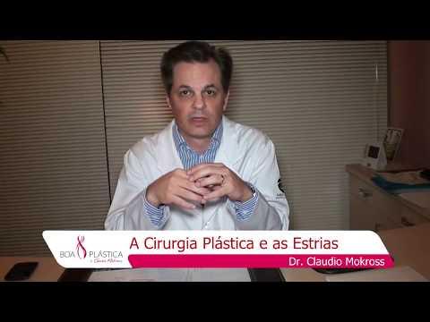 A Cirurgia Plástica e as Estrias