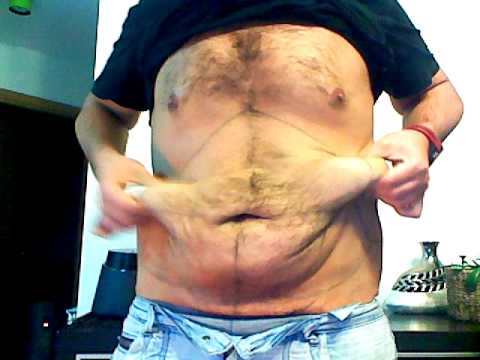Abdominoplastia - Abdominoplasty: seguimiento, antes y después en chico / before and after in boy 1