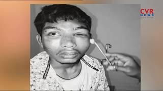 కరీంనగర్ లో మరో పరువు దాడి | Girl's Parents And Relatives Attack On Boy | CVR NEWS - CVRNEWSOFFICIAL