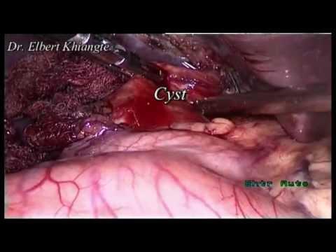 Laparoscopic Choledochal Cyst excision.