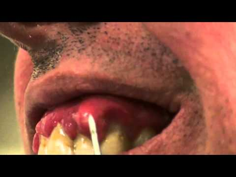 Lancing an Abscess Are Home Treatments Good or Bad for Dental Abscess