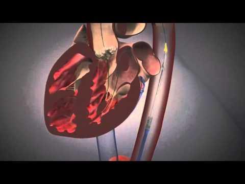 Transcatheter Aortic Heart Valve (TAVI)