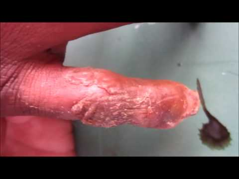 black head on the shaft of my penis Penile Disorders
