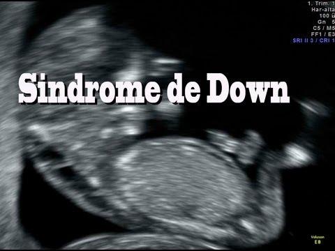 Ecografia 12 semanas embarazo vidoemo emotional video - Ecografia 3 meses ...