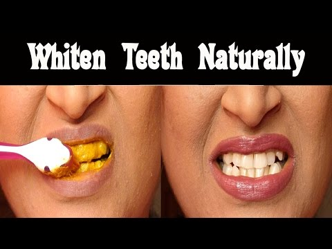 Turmeric would also be great for oral hygiene, not just tooth whitening, because it is such a strong anti-inflammatory, which is good for the gums.