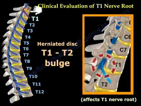 Neurological Examination Spinal Cord Part 3 - Everything You Need To Know - Dr. Nabil Ebraheim