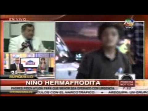 Niño Hermafrodita recibió ayuda del SISOL de Surquillo - Primera Noticias ATV 03-09-13