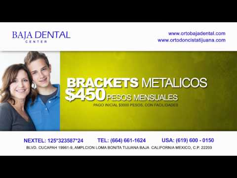 PROMOCIONES ORTODONCIA TIJUANA BAJA DENTAL CENTER