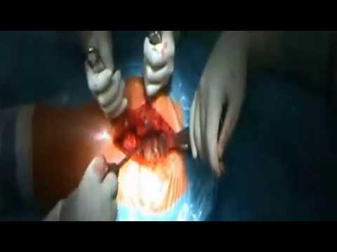 перация по эндопротезированию тазобедренных суставов