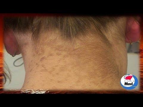 Como aclarar la piel oscura del cuello de forma natural