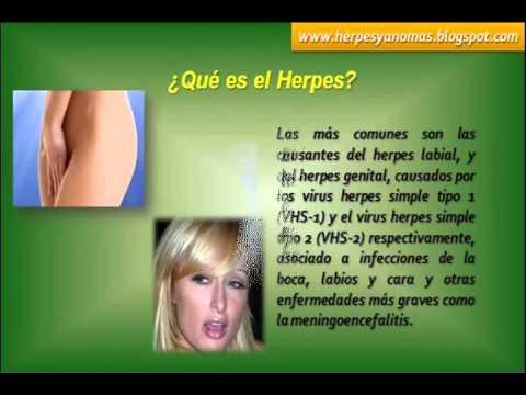 Que Es El Herpes | Cura Del Herpes