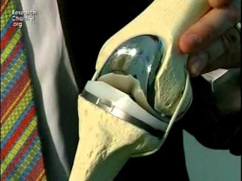 Knee: Minimally Invasive Total Knee Replacement Surgery Part 1
