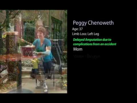 Amputee Coalition-Peggy Chenoweth