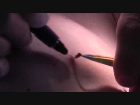Fibroma treatment with the Viridex RF