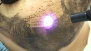 лазерный пилинг.flv