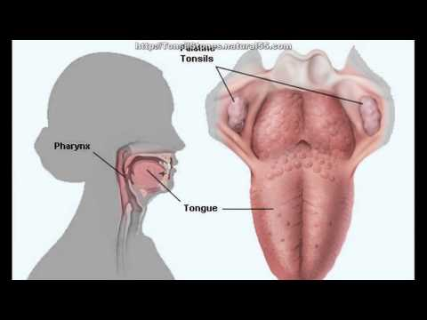 What Causes Tonsils During Pregnancy