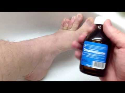 Избавиться от неприятного запаха ног в домашних  518