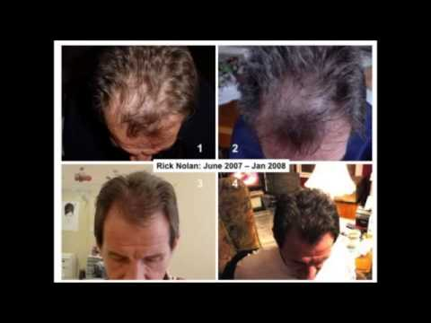 Nu Skin Nutriol Hair Fitness Treatment Before & After Photos!!!!