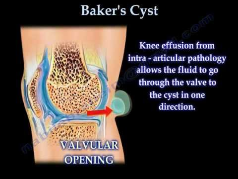 Baker's Cyst - Everything You Need To Know - Dr. Nabil Ebraheim