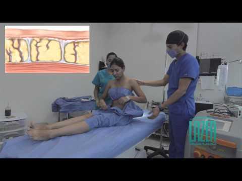 Lipoescultura Laser