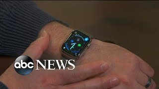 Man alerted to life-threatening problem on his Apple Watch - ABCNEWS