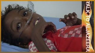 Impossible missions? The UN in Yemen and Syria   Talk to Al Jazeera - ALJAZEERAENGLISH