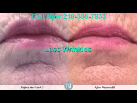 Nerium Skin Care Results | 210-305-7833