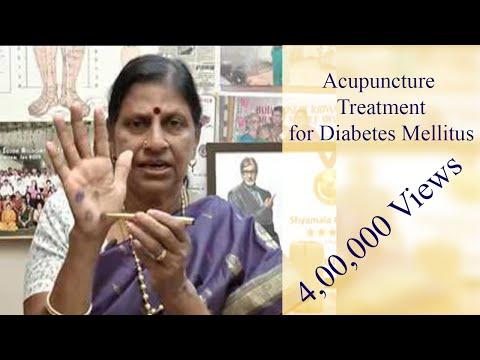 Acupuncture Treatment for Diabetes Mellitus - Natural Medicine இயற்கை மருத்துவம் - Dr. Shyamala