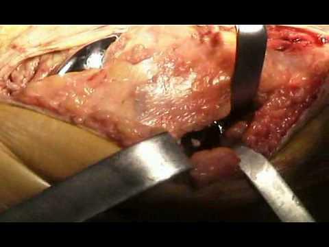 Revisione Polietilene in Protesi Ginocchio New Jersey.mpg