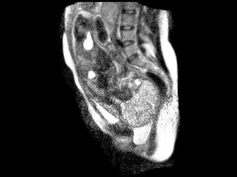Poród dziecka - obraz z rezonansu magnetycznego