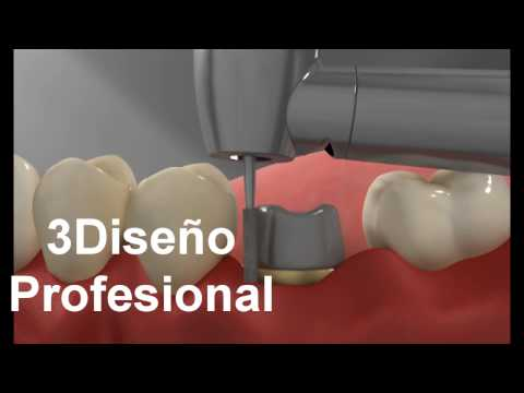 Perno corona dental 3d