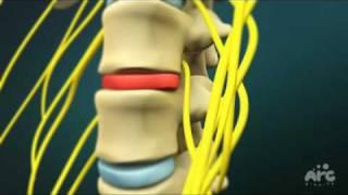 Colonne vertébrale : Vidéo de l'opération de l'hernie discale lombaire