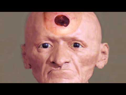 Massive Blackhead Cyst on Face?  Boil, Cysts, Blackhead Discovery!