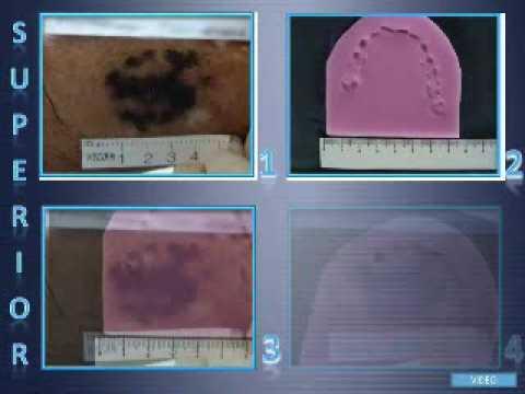 Video de Patología Forense parte II: Caso Sindoni, Dr. Gottfried Ryback