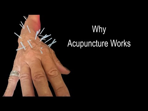 Why Acupuncture Works