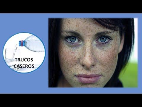 Remedios naturales para eliminar las pecas - Tratamiento para las manchas en la cara.