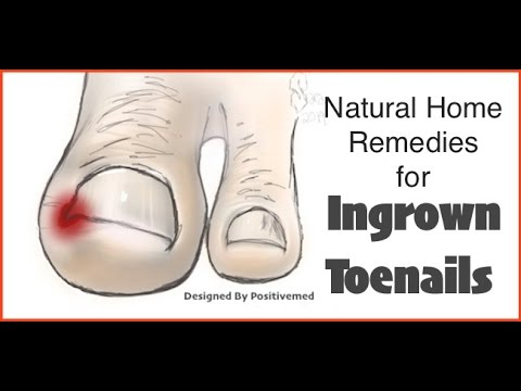 Natural Home Remedies for Ingrown Toenails