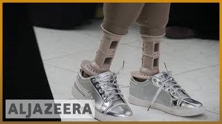 🇾🇪Yemen medical centres try to save war amputees l Al Jazeera English - ALJAZEERAENGLISH