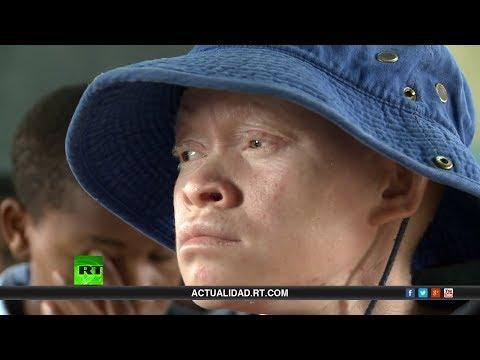 Albinos en África Injusticia y Persecucion Racial
