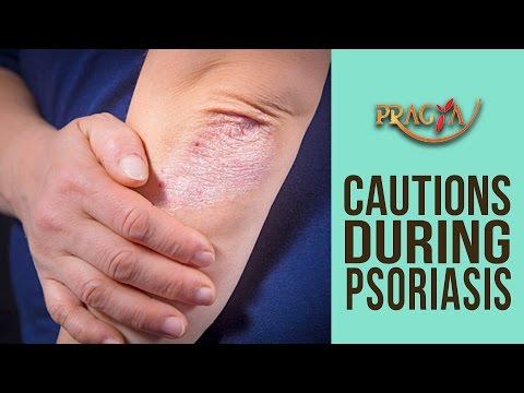 Cautions During Psoriasis | Dr. Dhruv (Dermatologist)