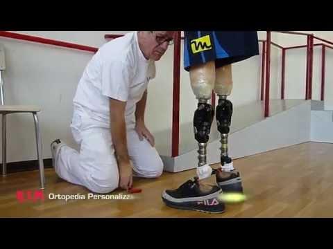 RTM Ortopedia: protesi per disarticolazione bilaterale di ginocchio