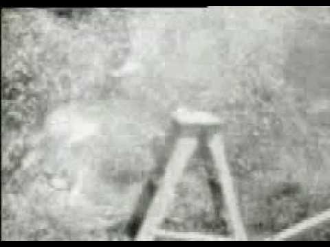 JFK Skull Test
